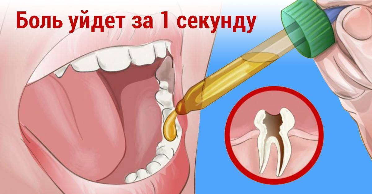 Как унять зубную боль у ребенка: эффективные методы и лекарственные препараты