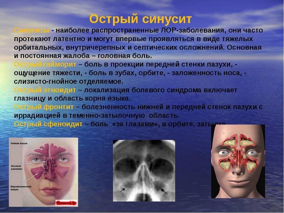 Синусит - что это такое, симптомы, лечение в острой или хронической форме препаратами и антибиотиками