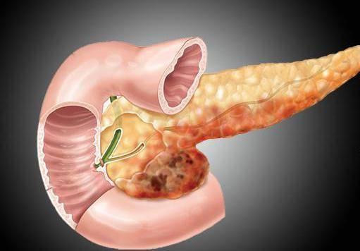 Панкреатит. реактивный панкреатит у ребенка причины возникновения реактивный панкреатит у ребенка причины возникновения