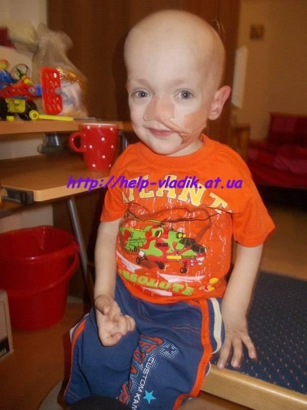 Остеопетроз мраморная болезнь у детей