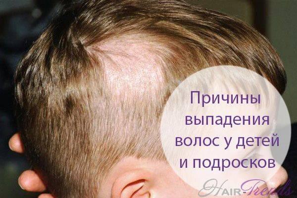 Почему у ребенка очень плохо растут волосы, выпадают: причины и коррекция проблемы у грудничков и детей постарше. волосы у новорожденных: гигиена головы с рождения