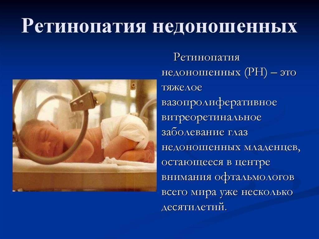 Ретинопатия новорожденных - ретинопатия у новорожденных недоношенных детей | медицинский портал spacehealth