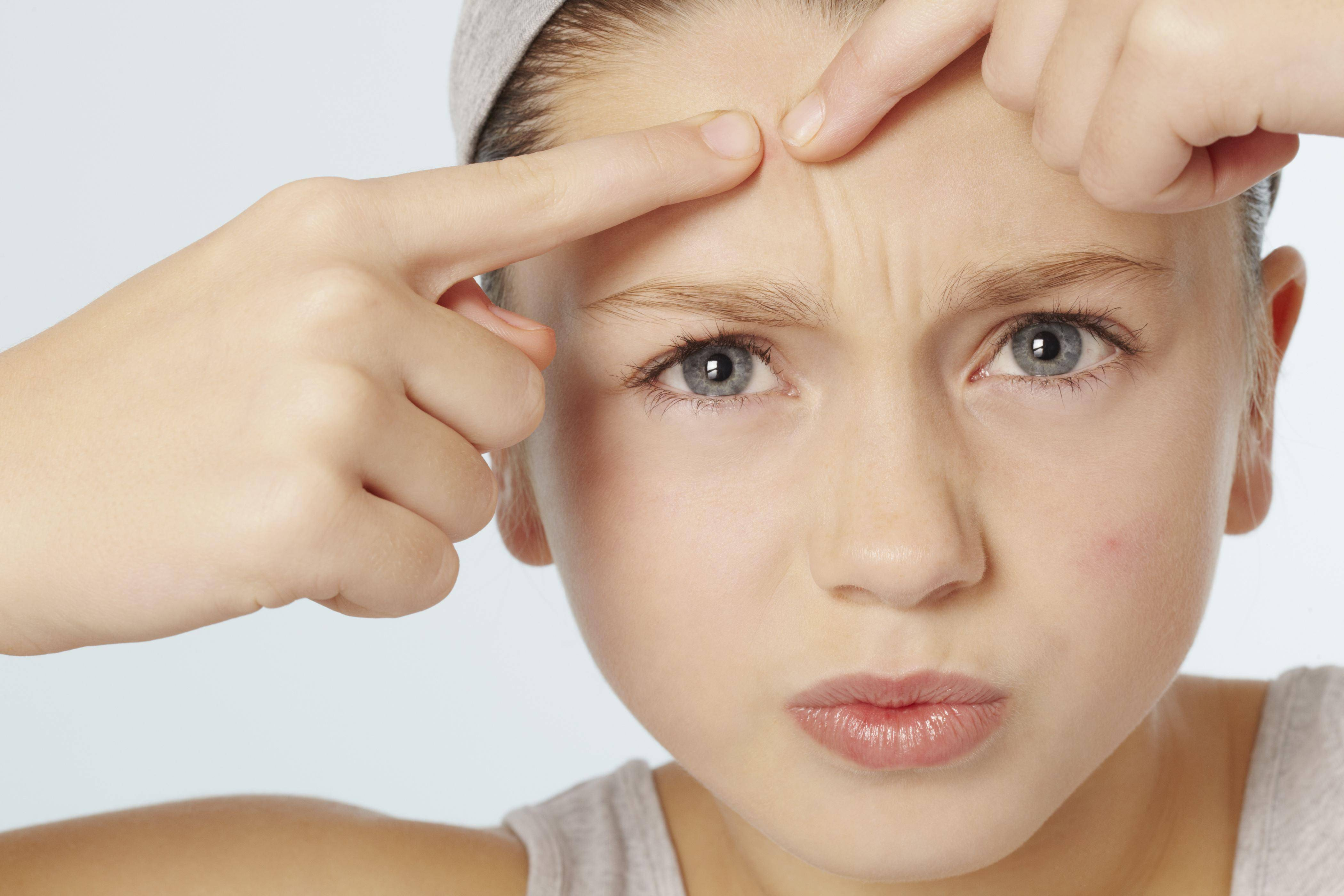 Лечение акне у подростков. советы и рекомендации, с фото