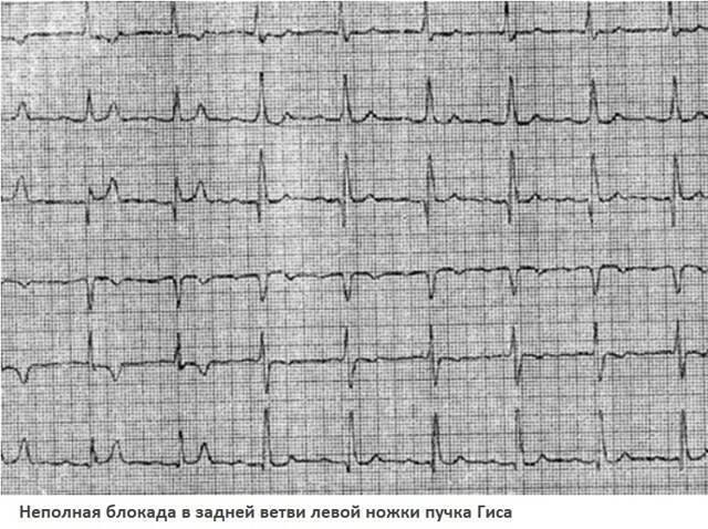 Нарушение внутрижелудочковой проводимости сердца у детей — заболевания сердца