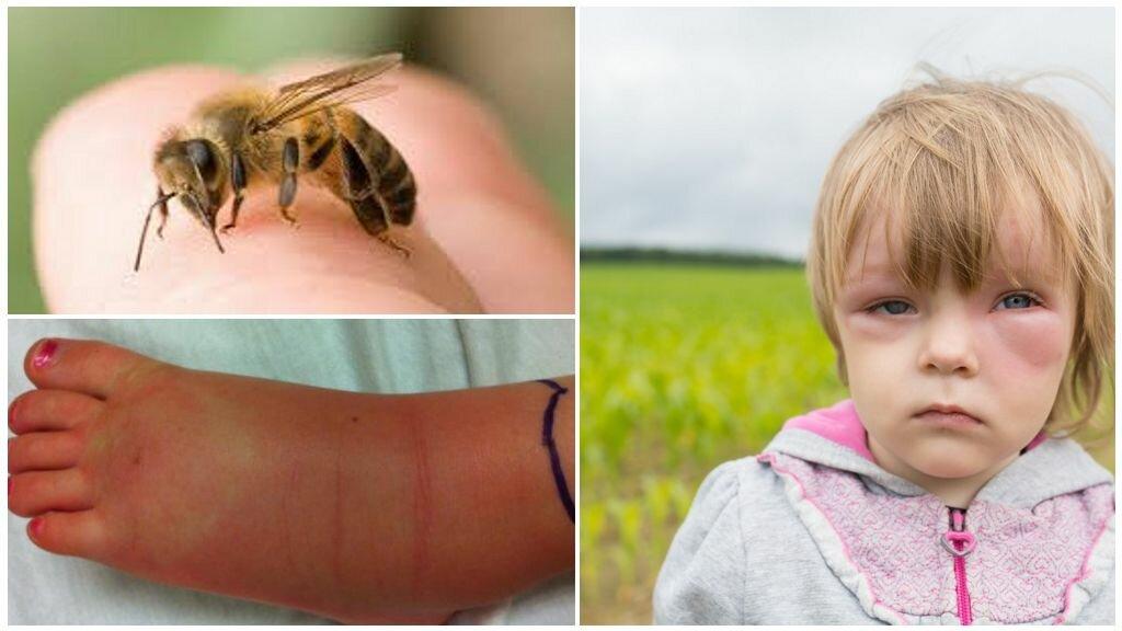 Что делать если ужалила пчела и как снять отек от пчелиного укуса