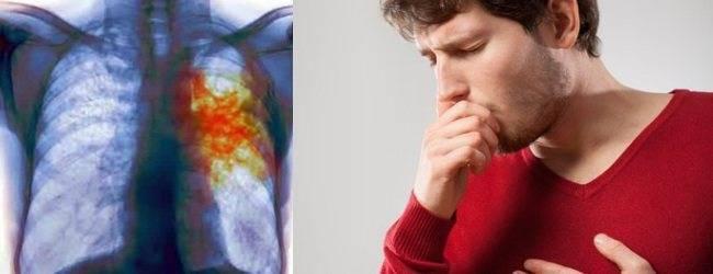 Могут ли глисты вызывать кашель у ребенка: сухой или в ночное время