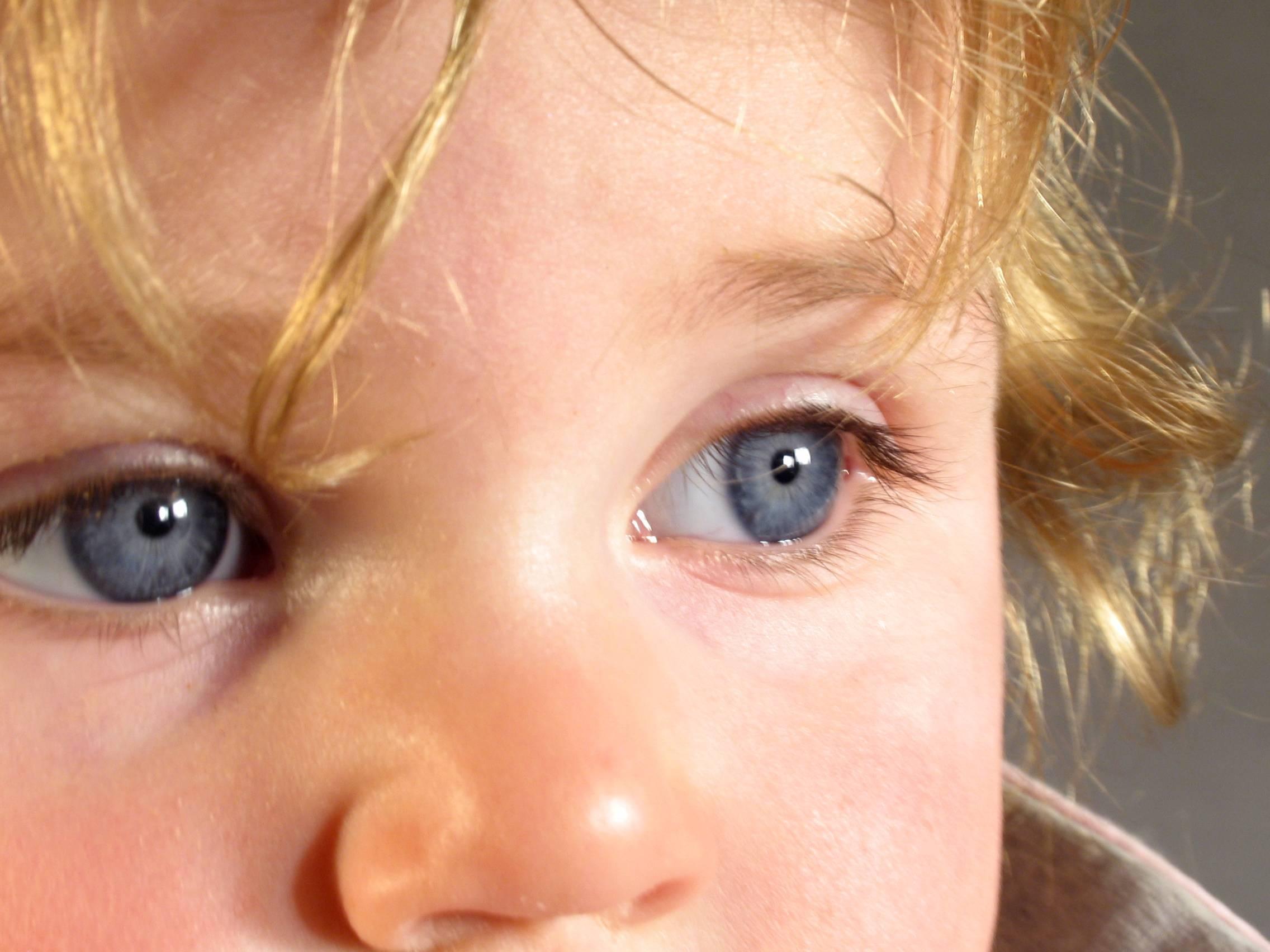 Ангиопатия сетчатки у ребенка (в т.ч. новорожденного)