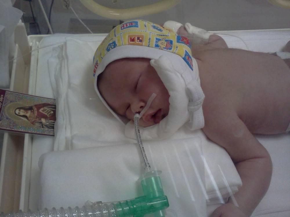 Отек мозга у новорожденного: от медицинской помощи зависит жизнь - врач-невролог