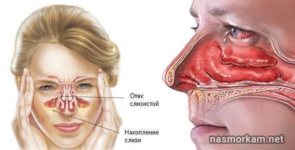 Как снять отек в носу: лечение слизистой в домашних условиях, как быстро убрать без сосудосуживающих капель, причины если без соплей