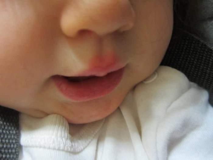 Чем лечить герпес на губах у детей — проверенные методы