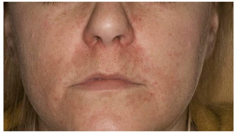 Сыпь вокруг рта у ребенка. причины 2-3, 5-6 лет, фото с пояснениями, чем лечить, что советует комаровский