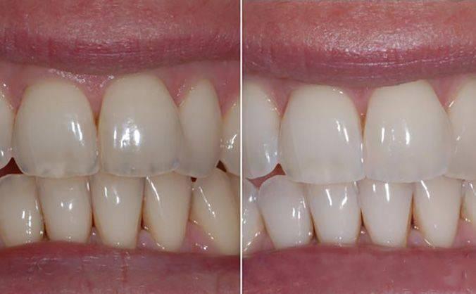 Фторирование зубов у детей с какого возраста - стоматолог