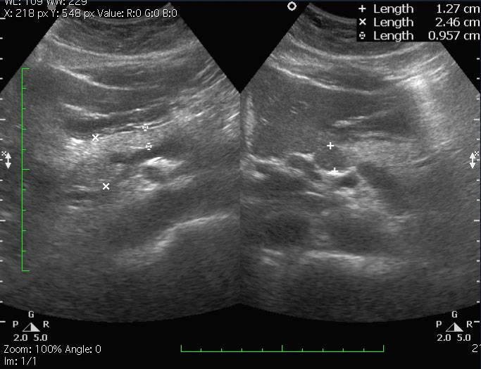 Реактивные изменения поджелудочной железы: причины и лечение.