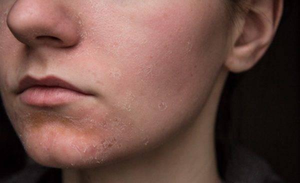 Сухость кожи во время беременности: причины и лечение