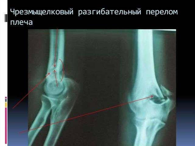 Чрезмыщелковый перелом плечевой кости у детей и межмыщелковый: открытый и закрытый, смещение