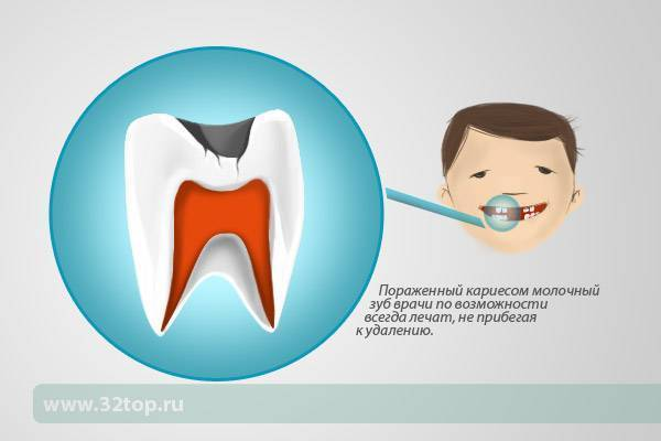 Нужно ли лечить молочные зубы у детей: методы лечения молочных зубов и зачем их лечить вообще, полезные советы