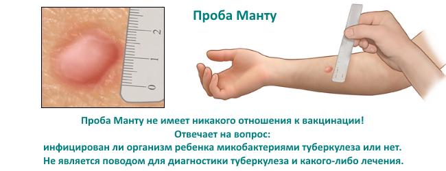Оценка результата пробы манту у детей