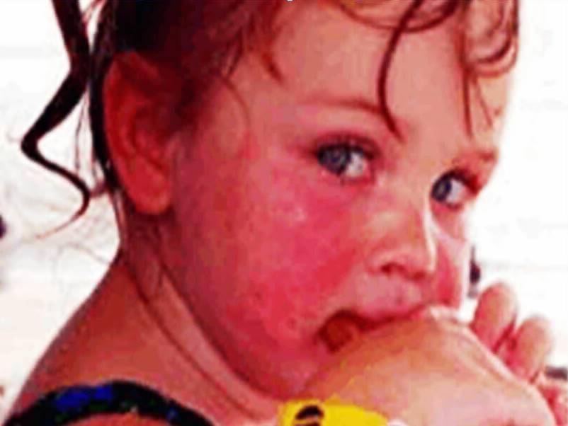 Аллергия на пыль: симптомы и профилактика