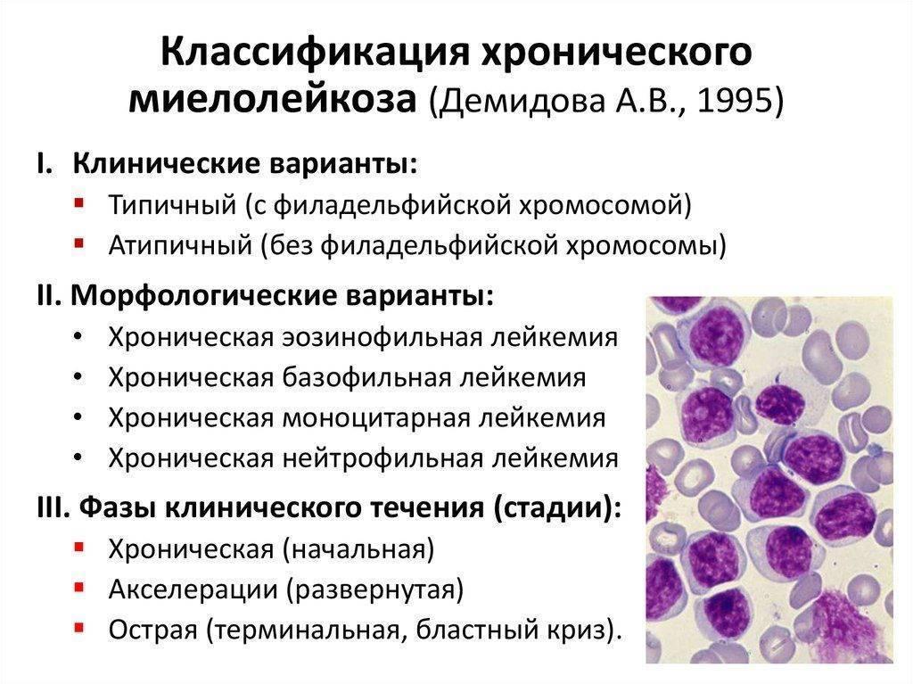 По каким признакам можно определить что у ребенка лейкоз и как лечат данную патологию