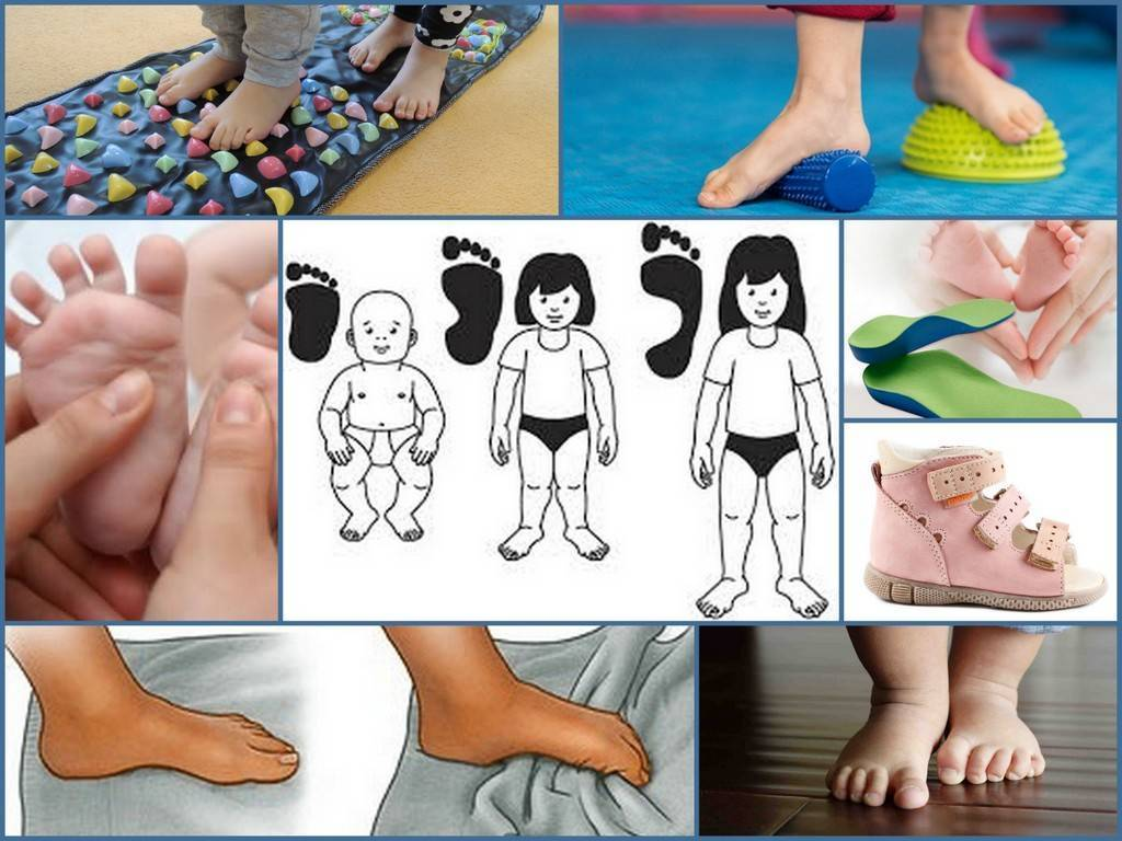 Плоскостопие у ребенка: причины возникновения, лечение и профилактика – на бэби.ру!