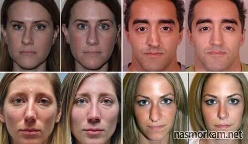 Признаки ушиба или перелома носа у ребенка