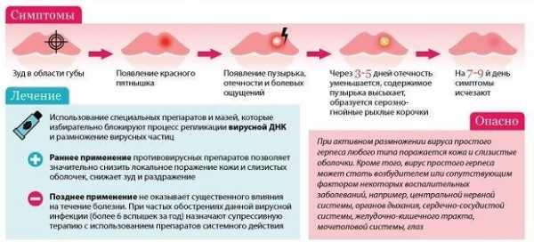 Опоясывающий герпес у детей: симптомы и последствия