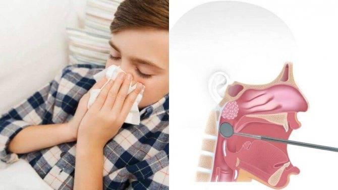 Температура у ребенка после операции аденоидов