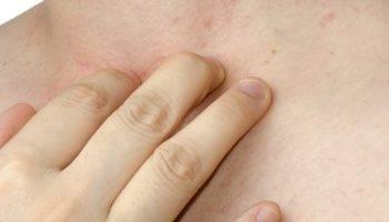 Сыпь у беременных чесотка