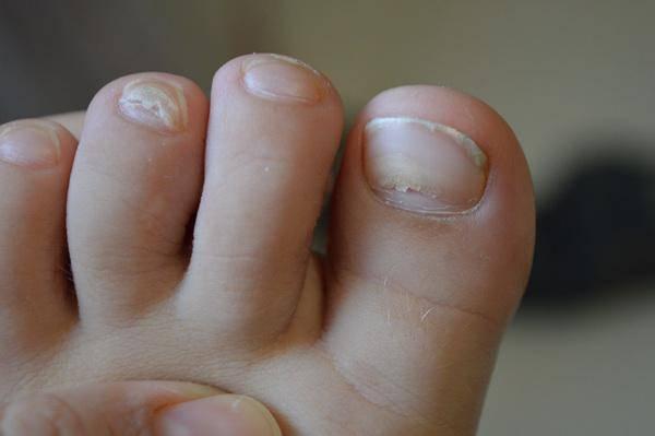 Почему слоятся ногти на ногах или руках у ребенка