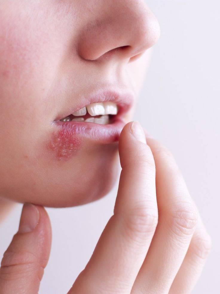 Стоматит у ребёнка во рту: лечение, фото, симптомы