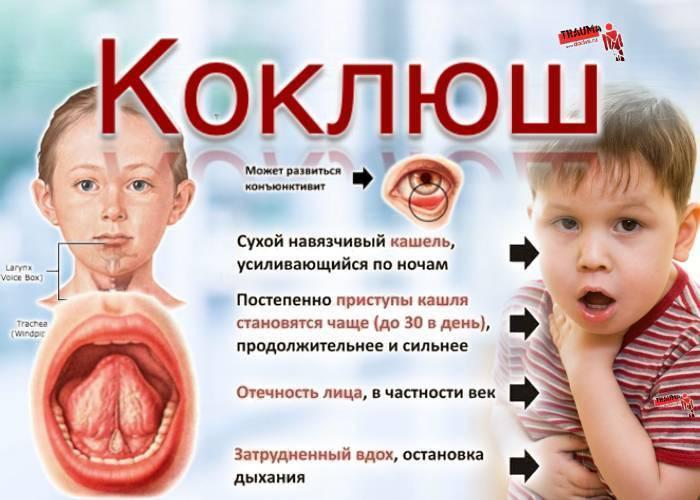 Симптомы коклюша у детей до года и старше: первые признаки и способы лечения в домашних условиях. коклюш у ребенка: признаки, лечение и профилактика первые признаки коклюша у детей