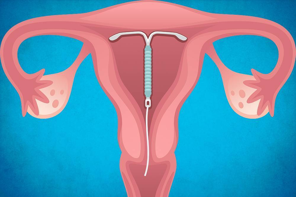 Как убирают спираль из матки - информация, которая удивляет