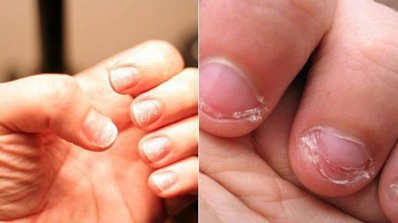 Почему слезают ногти на руках у ребенка?