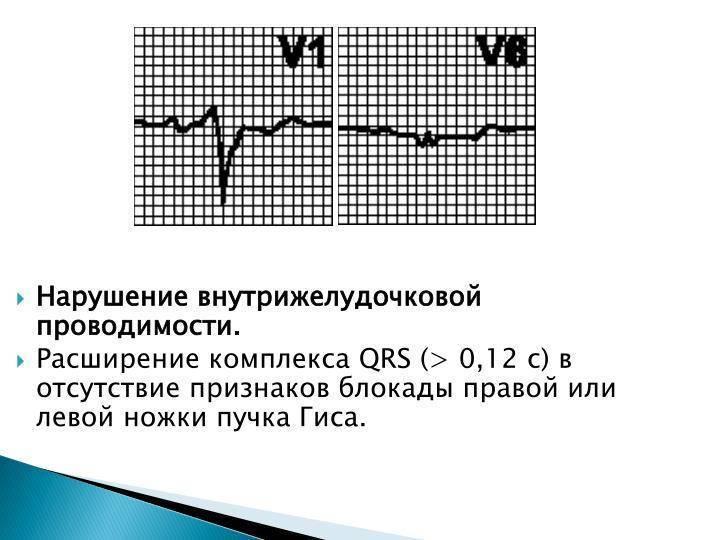 Нарушение внутрижелудочковой проводимости сердца у детей на ЭКГ: что это и как лечится?