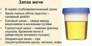 У грудничка моча пахнет - о чем это говорит | moninomama.ru