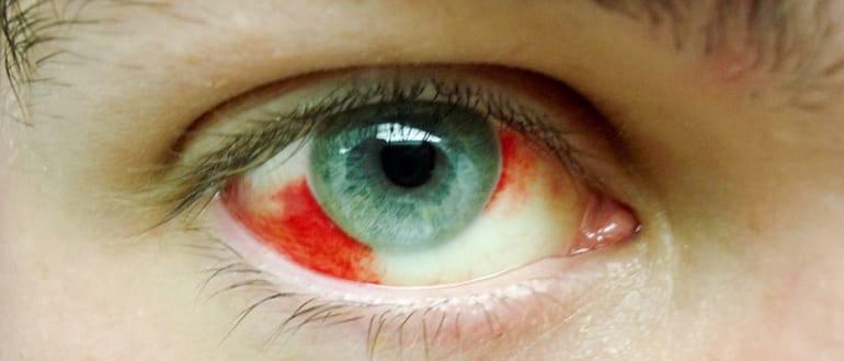 Почему лопаются сосуды в глазу и как их быстро убрать?