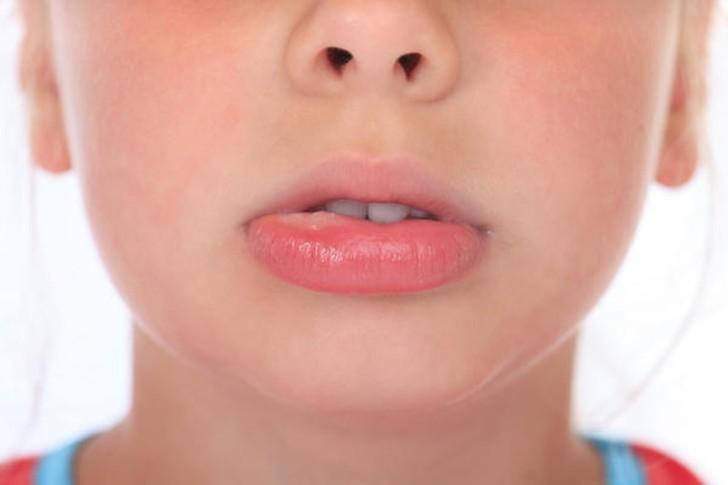 Распухла губа у ребенка: причины и что делать