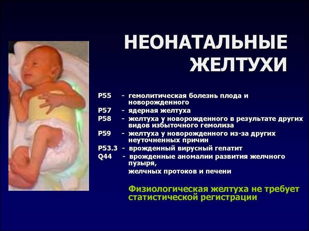 Желтуха у новорожденных: причины, лечение, последствия / mama66.ru