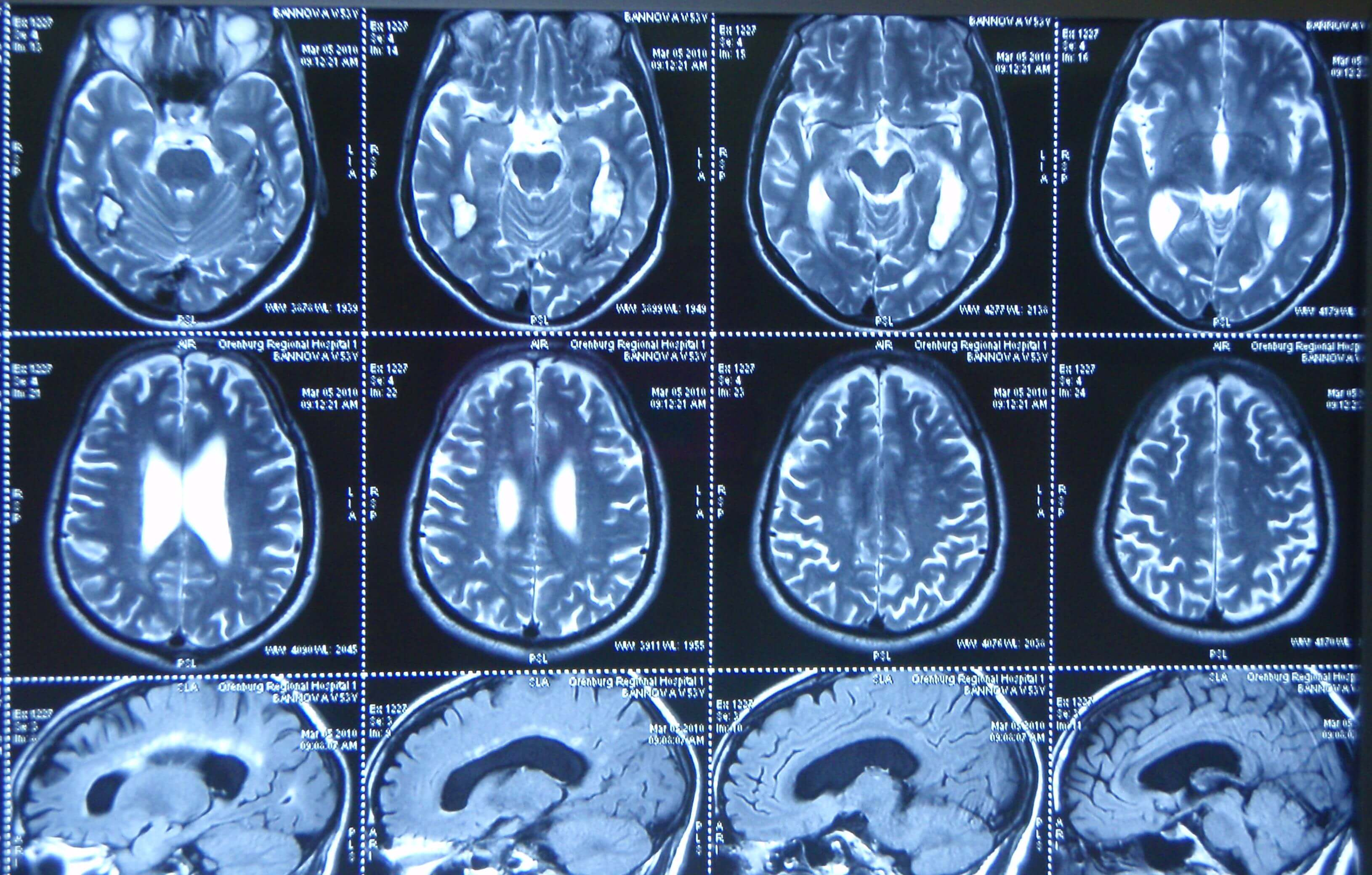 Кт головного мозга у детей: метод экстренной диагностики тяжелой патологии