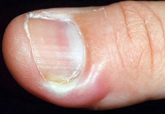 Нарыв на пальцах рук и ног возле ногтя: как лечить