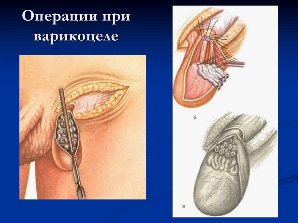 Варикоцеле у подростков: степени, особенности лечения, отзывы медиков
