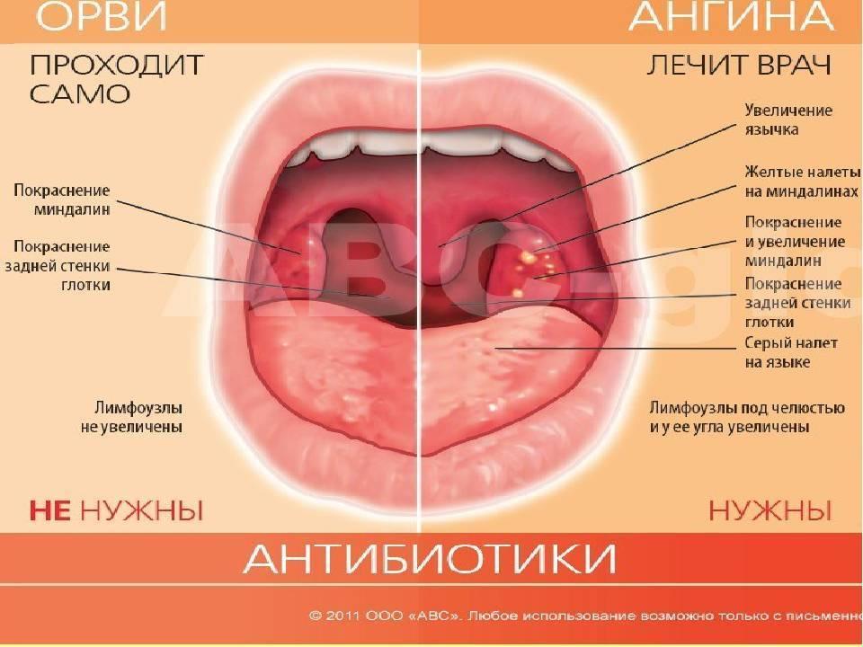 Герпес в горле: фото, лечение детей и взрослых, симптомы