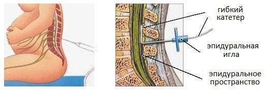 После эпидуральной анестезии болит спина: нормально ли это, сколько длится боль и что делать? - все о суставах