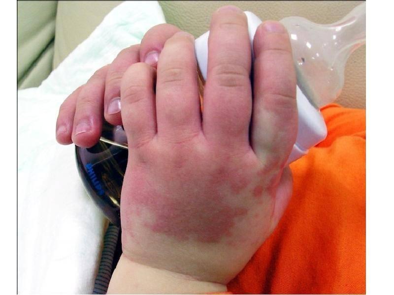 Болезнь кавасаки у детей: фото, симптомы, клинические рекомендации, лечение