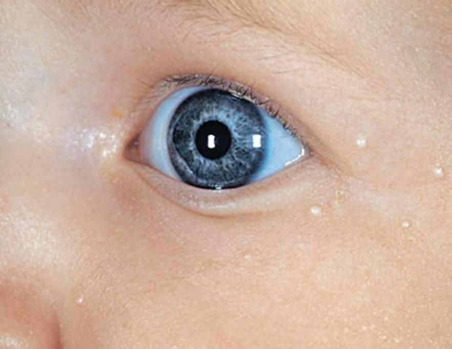 Белые точки на носу у новорожденного ребенка - что это и почему они появляются?