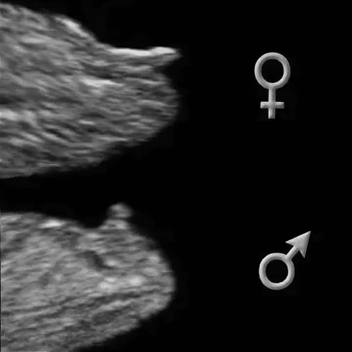 Мальчик или девочка? как узнать пол будущего ребёнка? — блог — беременный папа