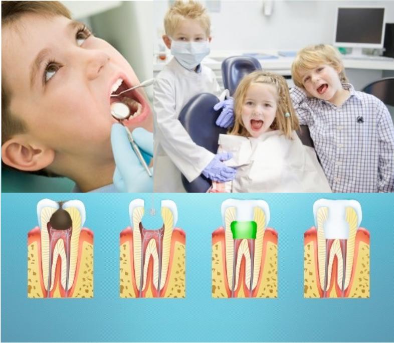 Серебрение молочных зубов у детей — зубы