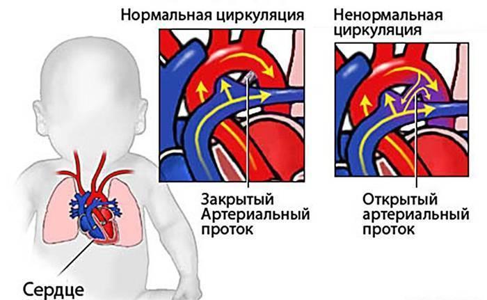 Впс у новорожденных (врожденные пороки сердца): признаки, причины и лечение