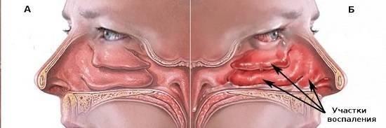 Вазомоторный ринит: все о причинах и методах лечения заболевания