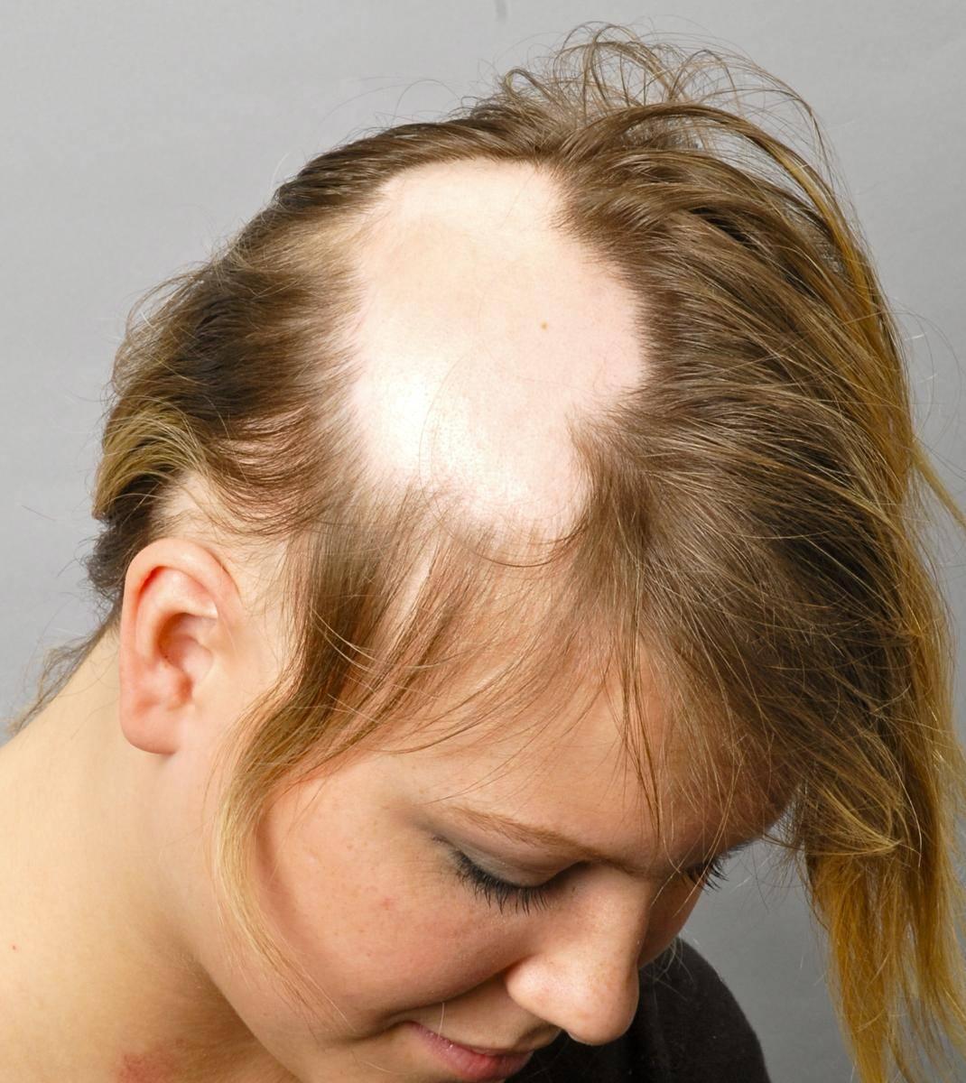 Почему у ребенка выпадают волосы: лечение детской алопеции